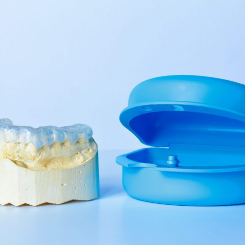 Grind guard on a custom-made tooth model, used against excessive wear caused by bruxism, with additional blue case